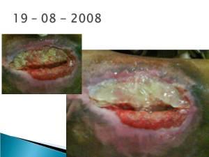 posthospitalnurseapp41